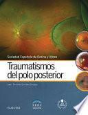 Descargar el libro libro Traumatismos Del Polo Posterior